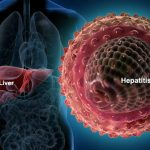 https://img.webmd.com/dtmcms/live/webmd/consumer_assets/site_images/articles/health_tools/hepatitis_overview_slideshow/webmd_rf_photo_of_liver_and_hepatitis_virus.jpg
